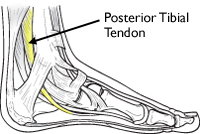 The PTT attaches the calf muscle to the bones on the inside of the foot, allowing you to raise it when you take a step. (image from aaos.org)