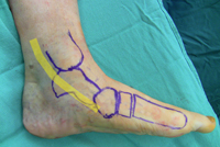 This photo illustrates the areas where pain will be experienced in posterior tibialis dysfunction. (image from aaos.org)