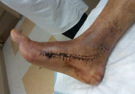 Frankenstein foot circa 2010