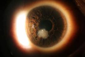 The white blob is a corneal ulcer (image from theeyepractice.com.au)