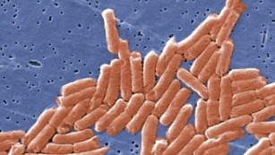 140917151344-salmonella-enterica-medium-plus-169